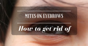 mites on eyebrows
