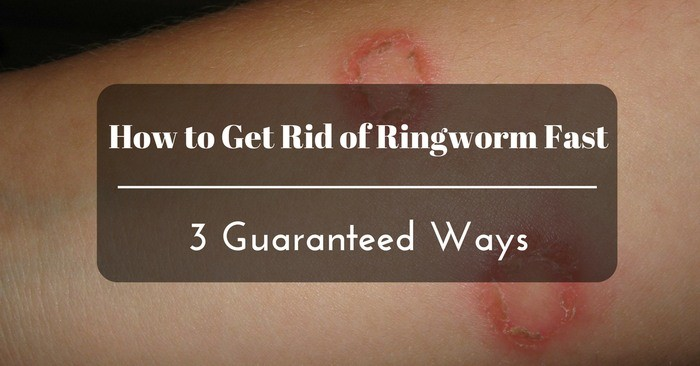 How to Get Rid of Ringworm Fast: 3 Guaranteed Ways