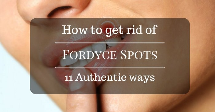 11 Authentic Ways On How To Get Rid Of Fordyce Spots And Have An Amazingly Clear Skin