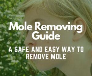 mole-removing