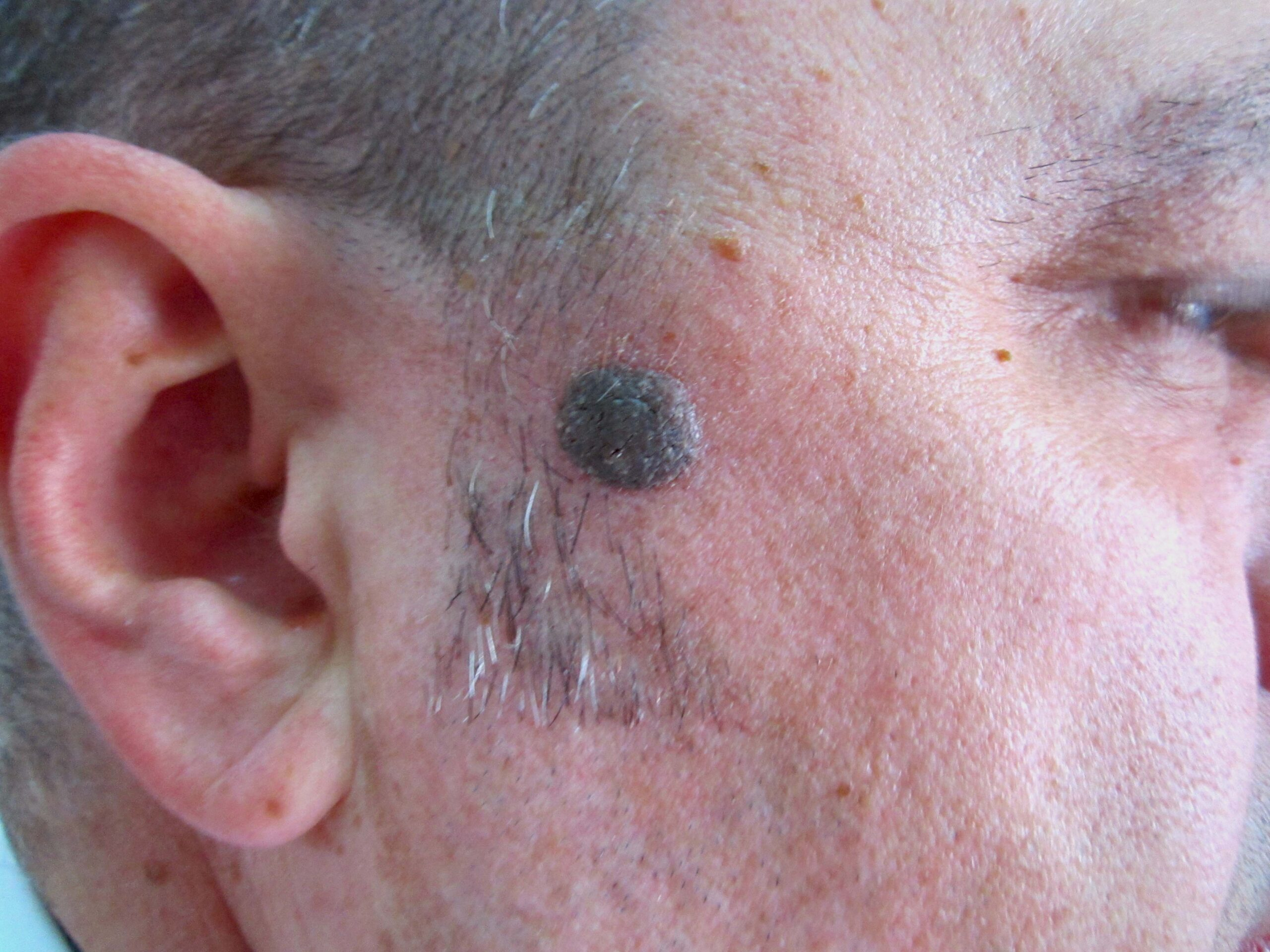 moles on your skin