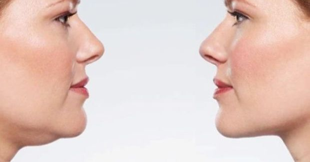 how long does it take to lose face fat