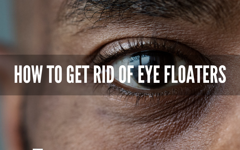 How to Get Rid of Eye Floaters – A Complete Guide